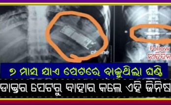 man swallowed mobile in prank with friend how doctors took it out from stomach after 7 month