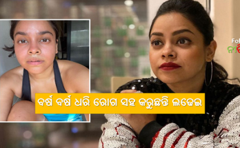 Kapil Sharma's 'Bhuri' is unemployed Sumona Chakraborty has been fighting this disease for years